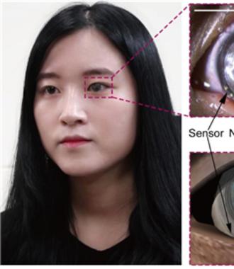 스트레스 수치 측정하는 스마트 콘택트렌즈 개발